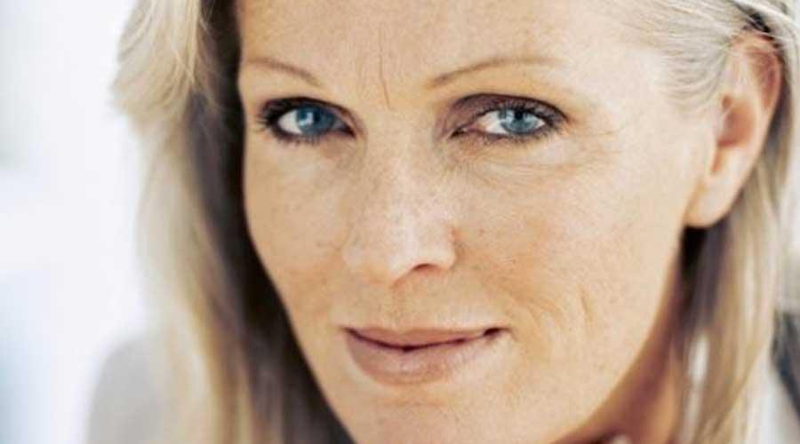 Arrugas faciales estáticas:
