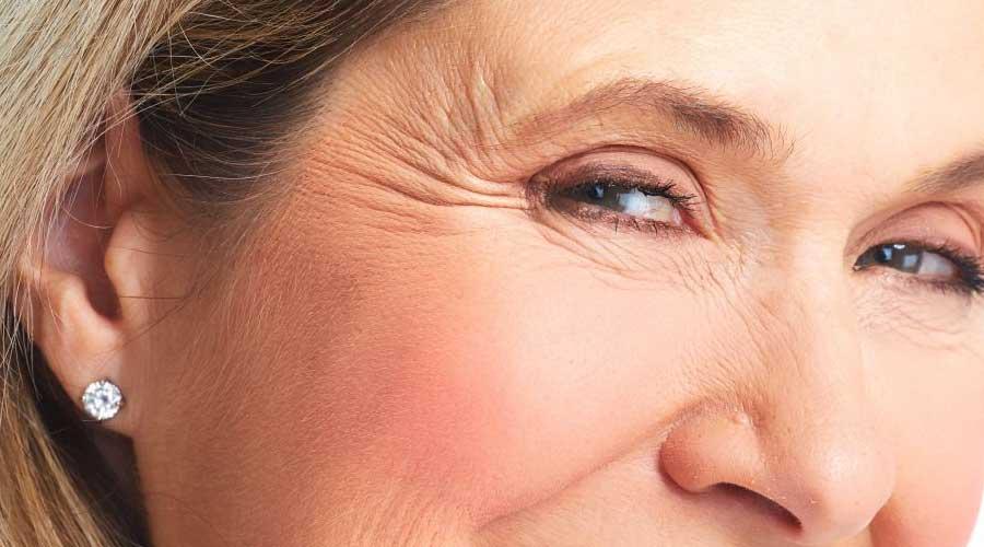 Arrugas faciales dinámicas